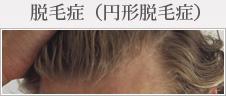 脱毛症(円形脱毛症)