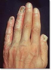 乾癬の症状