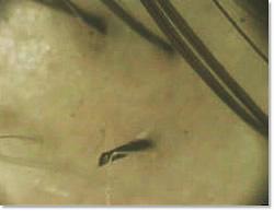 円形脱毛症の症状