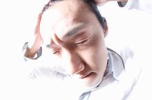 円形脱毛症の経過