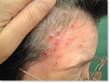 ヘルペス(帯状疱疹、単純疱疹)