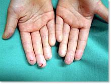 手の湿疹、手荒れ